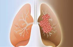healthy-lung-and-cancer-lung-385x247