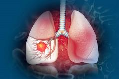 lung-cancer-screening-400x267