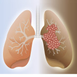 Healthy-lung-and-cancer-lung-150x150